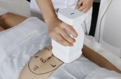 Liposonic HIFU fogyasztás választható testrészen