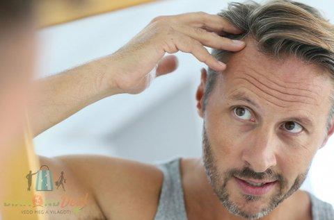 Magnetspace hajgyógyászati kivizsgálás