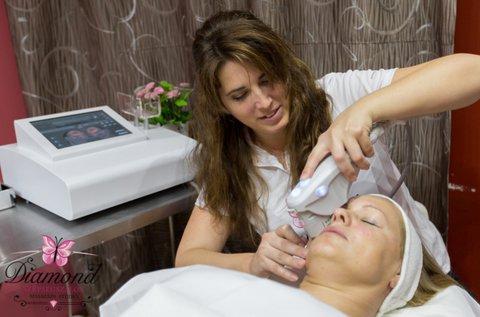HIFU arcfiatalító kezelés a mimikai ráncok ellen