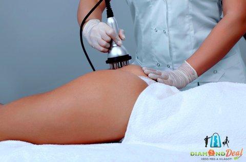 Karcsú alak 5 alkalom lipolézeres zsírbontással