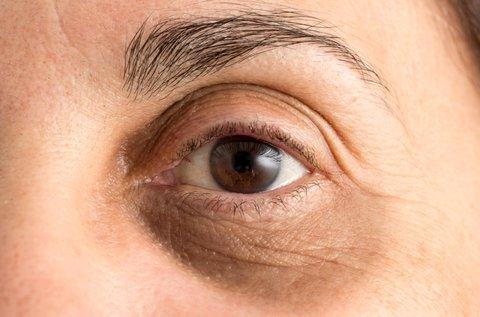 Ödémás, táskás szemek kezelése rádiófrekvenciával