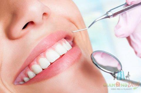Egészséges fogak fehérítő hatású Airflow kezeléssel