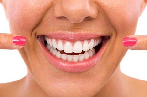 Lézeres fogínykezelés mindkét fogíven