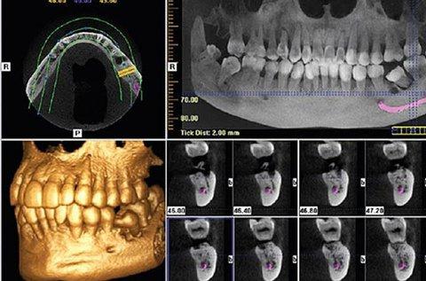 3D Cone Beam fogászati CT felvétel