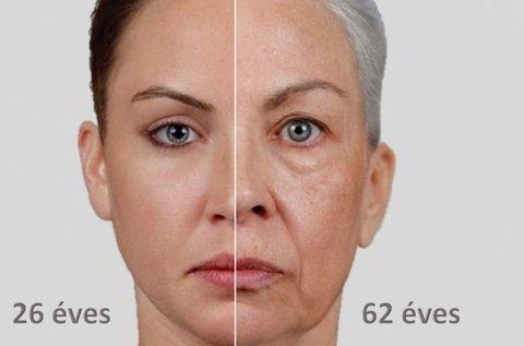 Hyalurox lézeres ráncfeltöltés arcvasalással