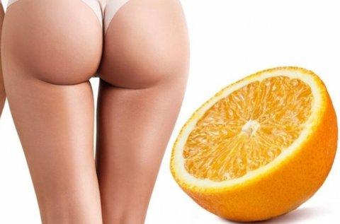 Hideg-meleg lézeres narancsbőr eltüntetés
