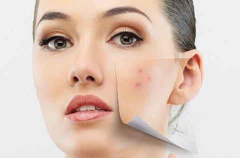 Arctisztítás orvos-kozmetikai infralézertus kezeléssel