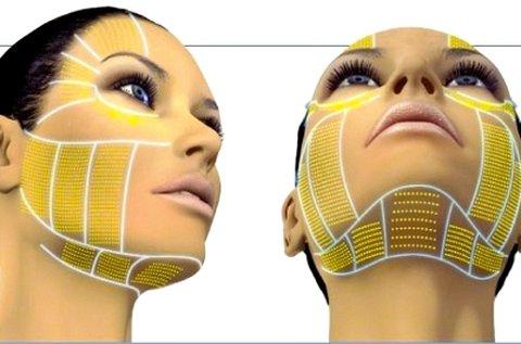 HIFU ránctalanító kezelés teljes arc és toka területre
