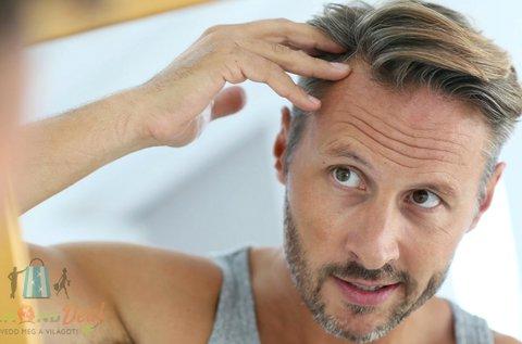 Teljes körű hajgyógyászati vizsgálat