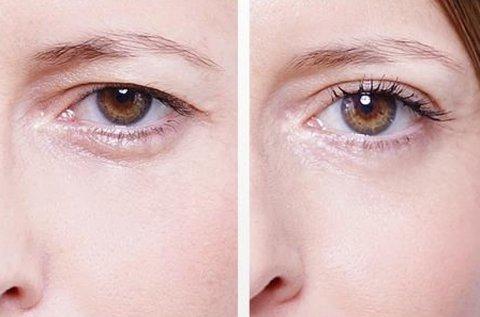 EyeByas-Move felső és alsó szemhéj fiatalítás
