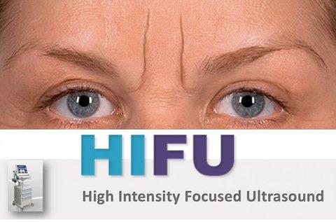 HIFU ultrahangos feltöltés mérgesránc területen