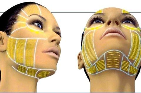 HIFU ránctalanító kezelés teljes arc és toka területen