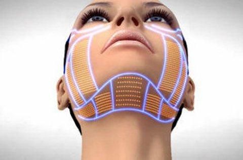 HIFU bőrkisimító kezelés teljes arcon