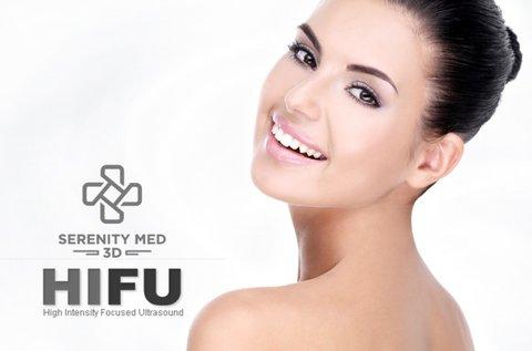 Feszes, ránctalan arcbőr Serenity MED 3D HIFU-val