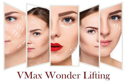 VMax Wonder Lifting ultrahangos tokafeszesítés