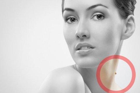 Fibrómák, jóindulatú bőrnövedékek eltávolítása