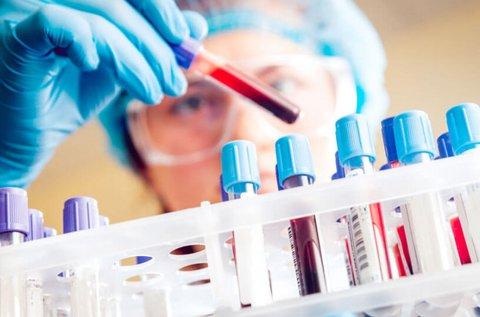 Laboratóriumi vérkép vizsgálat góckutatással