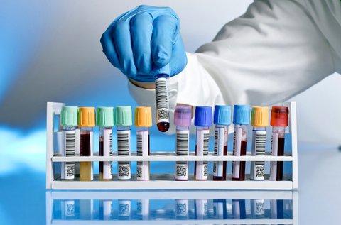 Komplex laborvizsgálat lappangó betegségek ellen