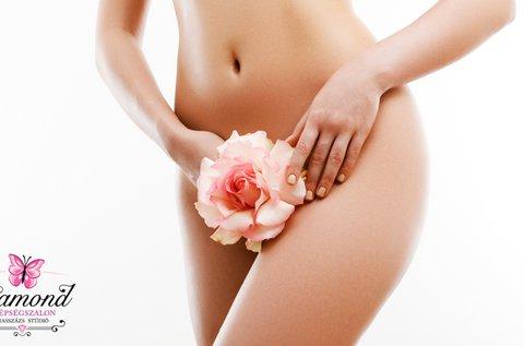 5 alkalmas BioMed SHR intim és bajusz szőrtelenítés
