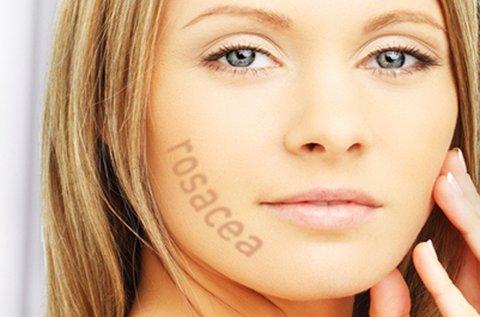 Lézeres rosacea vagy hajszálér eltüntetés arcon