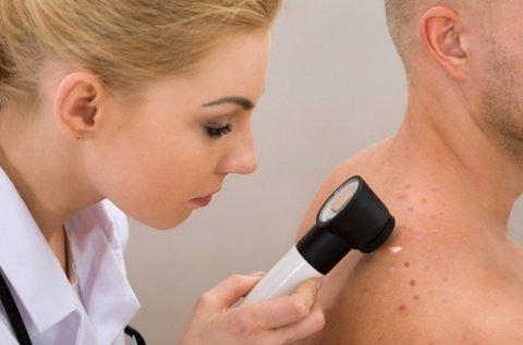 Melanoma és más bőrbetegségek szűrése
