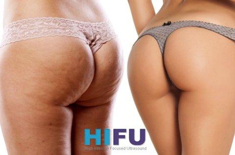 BodyArt HIFU kezelés fenék és comb területen