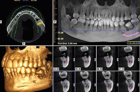 Fogászati 3D Cone Beam CT felvétel készítés