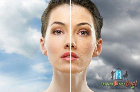 Mikrodermabráziós bőrcsiszolás arc területen