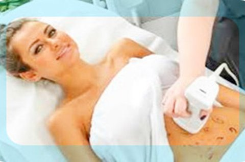 Liposonic Body HIFU alakformáló kezelés