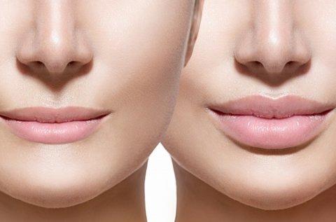 Perfect Lip ajakkezelés kontúrfrissítéssel