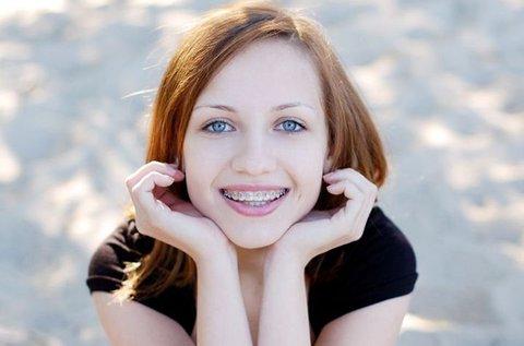 Fém fogszabályozó készülék 1 fogívre