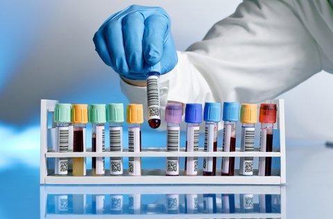 Rejtőző betegségek felderítése laborvizsgálattal