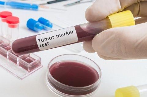 Rákmegelőző vizsgálat tumormarker szűréssel