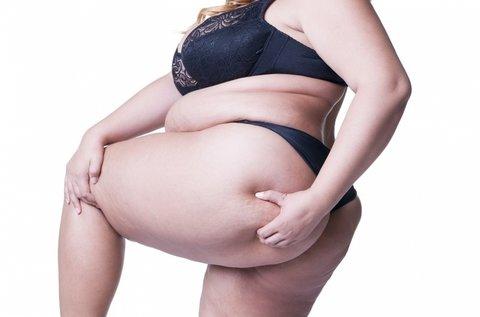 15 alkalmas intenzív zsírtördelés