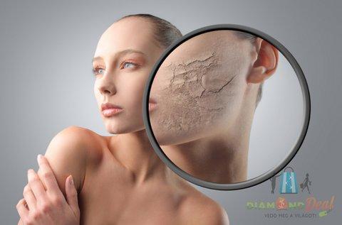Ultrahangos arcfrissítés mikrodermabrázióval