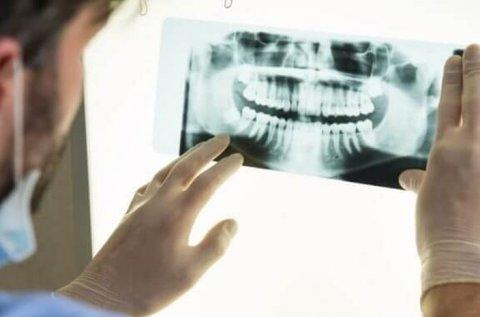 Digitális panorámaröntgen kiértékeléssel