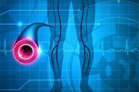 Végtagi ultrahangos doppler vizsgálat