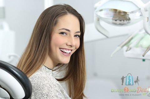 LED lámpás WhiteBOOM peroxidmentes fogfehérítés