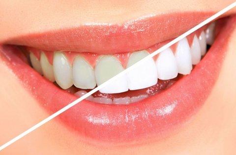 LED-es fogfehérítés ajándék fogkő-eltávolítással