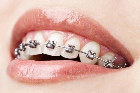 Rögzített fém fogszabályzó 1 fogívre