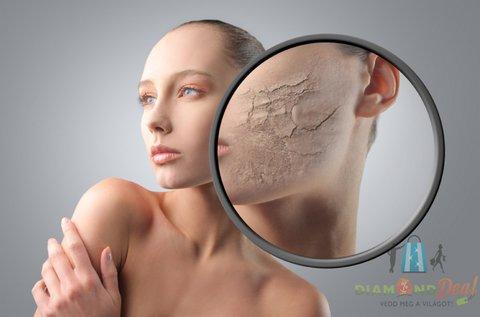 Ultrahangos arcbőrfrissítő csomag