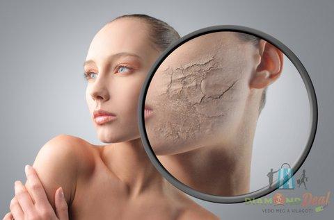 4 alkalom lézeres Carbon Peeling kezelés aknék ellen