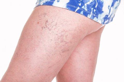 5 alkalom lézeres kezelés hajszálér, rosacea ellen