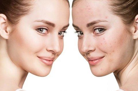 BB Glow tartós alapozó az egyenletes arcbőrért