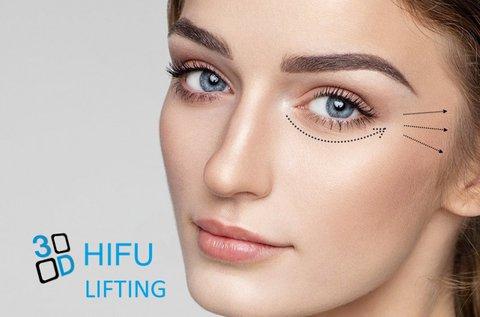 Tartós és hatékony ráncfeltöltés HIFU-val