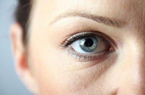 Rádiófrekvenciás kezelés a karikás szemek ellen