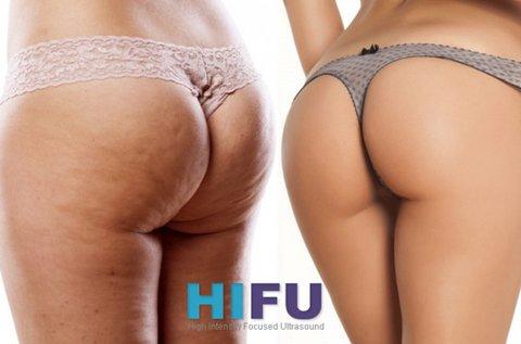 BodyArt HIFU fenék- és combfeszesítő kezelés