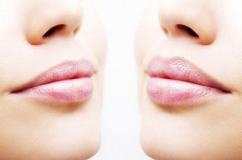 Perfect Lip speciális ajakkezelés mezopennel