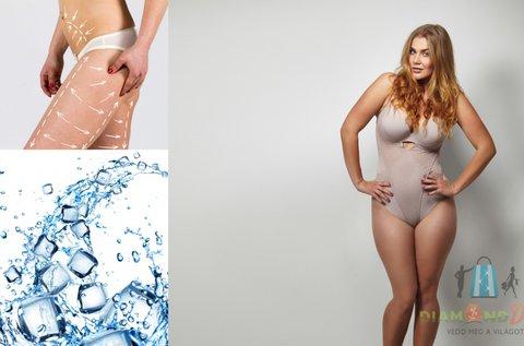 Zsírfagyasztás 4 tenyérnyi tetszőleges területre