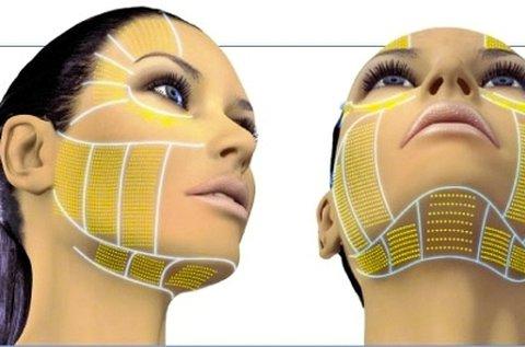 HIFU ránctalanító kezelés teljes arcon és tokán